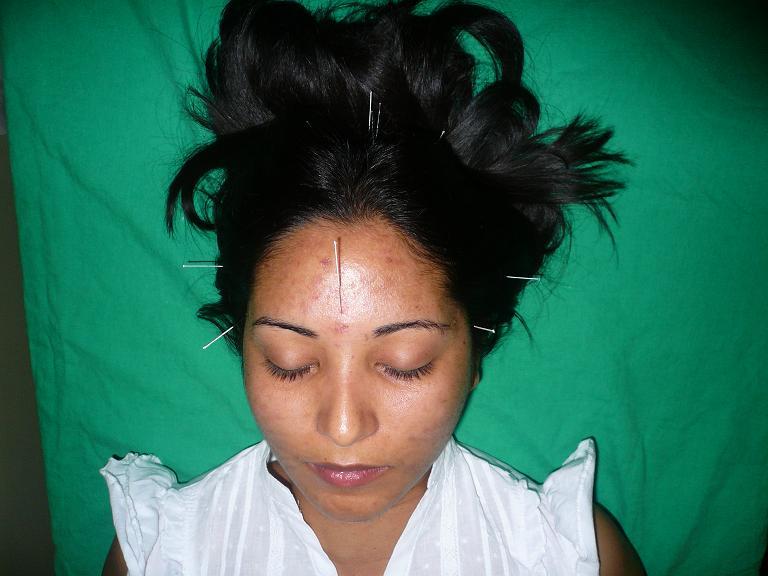 Paciente con Cefalea en el Vertex
