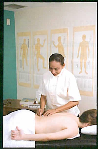tratamiento-con-acupuntura3